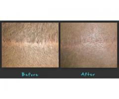Hair replacement treatment in London, UK